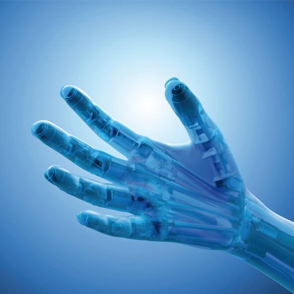 Myoetectrinen ylaraajaproteesi